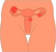 子宮のトラブル
